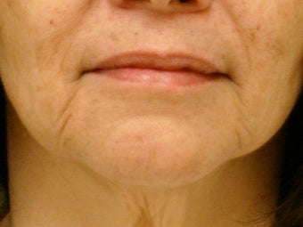 Treatment of marionette lines with a dermal filler before 377064