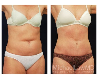 Abdominoplasty - Tummy Tuck after 396121