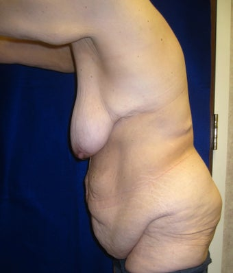 Body Lift and Breast Lift 400450