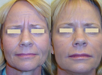 Botox and Fillers before 92984