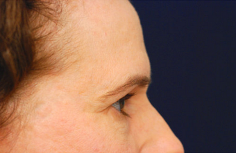 Eyelid Surgery / Fat Grafting 347487