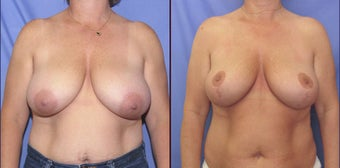 Breast Reduction before 98605