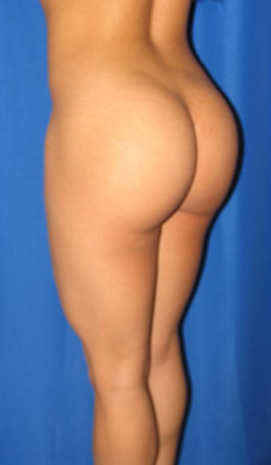 Buttocks Augmentation after 420084