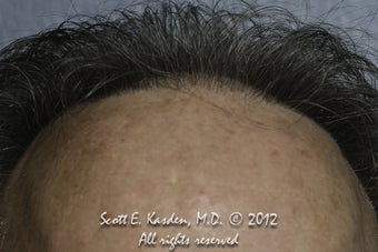 AccuGraft Hair Transplant before 589495
