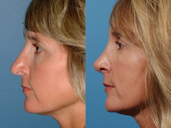 Revision rhinoplasty 355710