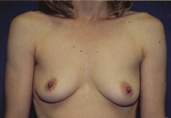 Breast Augmentation before 266777