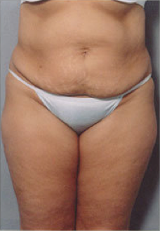 Tummy Tuck before 428193