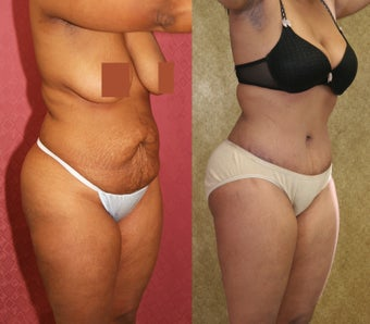 tummy tuck after 304701