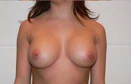 Trans-axillary Breast Augmentation after 417732
