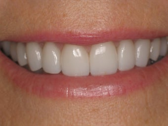 Zoom Whitening; Porcelain Veneers; Porcelain Crowns 370559