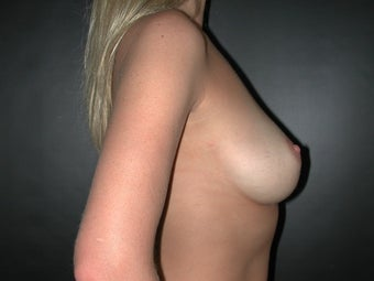 Breast Augmentation before 110083