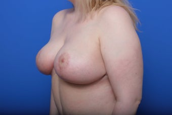 Breast Reduction 621923