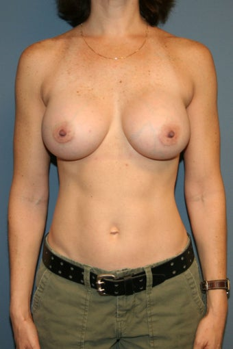 Breast augmentation /implant