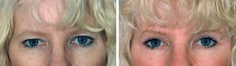 Blepharoplasty before 643182