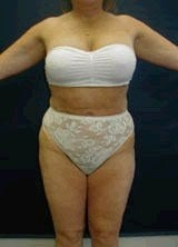Liposuction Surgery after 143940