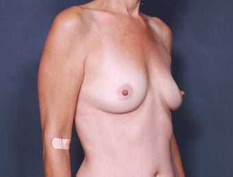 Breast Augmentation 398401