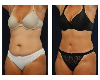 Tummy Tuck or Abdominoplasty before 283165