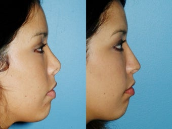 Revision rhinoplasty after 395565