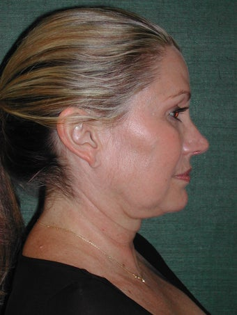 Female Facelift before 117062
