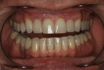Aesthetic Implants Replace Missing Front Teeth