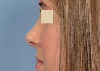 Rhinoplasty after 112966