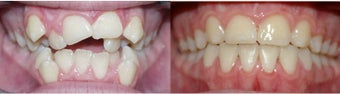 Before and after orthodontic treatment before 300714