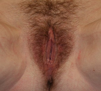 Vaginoplasty after 261002