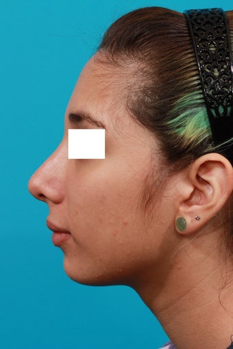 Closed Rhinoplasty after 134616