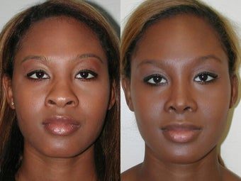African American Rhinoplasty before 210166