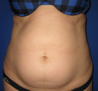 Laser Liposuction before 362289
