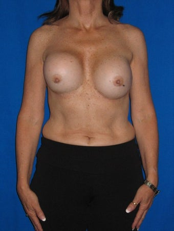 Breast Augmentation Revision before 75974