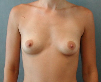 Breast augmentation before 409973
