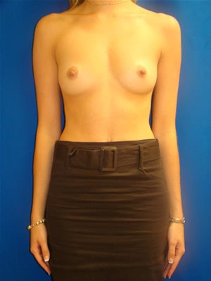 Breast Augmentation Surgery before 141024