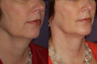 Chin implant before 376404