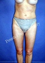 Liposuction after 634646