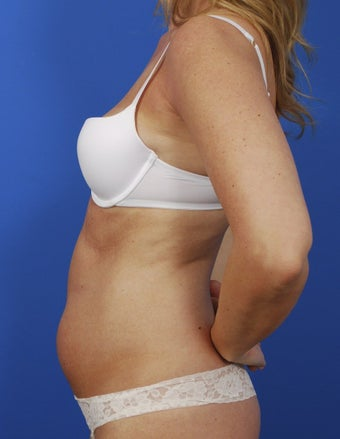 Laser Liposuction 364486