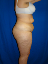 Extended Tummy Tuck, Liposuction, 495158