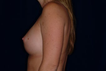 Breast Augmentation 336407
