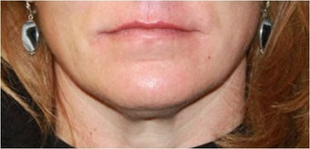 Lip augmentation - juvederm after 435618