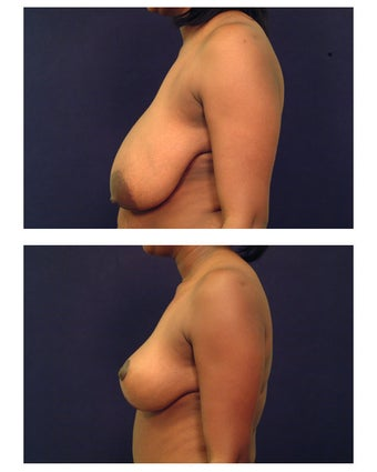 Breast Reduction before 286983
