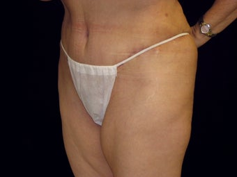 Abdominoplasty after 258236