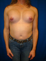 Transgender Surgery- Breast Implants after 131869