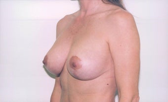 Breast Lift after 218952