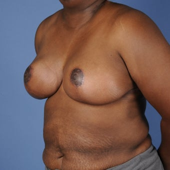Breast Reduction 352964