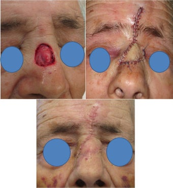 Nasal bridge defect repair after Mohs Surgery before 82509