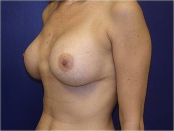 Breast Augmentation 427306