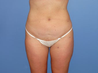 Tumescent liposuction before and after after 78800