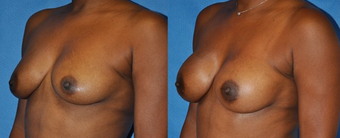 Flash Recovery Breast Augmentation TM before 253895