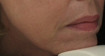 Fraxel re:pair (repair) CO2 laser for Mouth, Jowls, and Lips after 64890