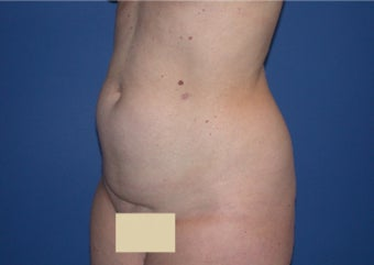 Liposuction before 199094